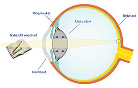 funktionsweise multifokallinse
