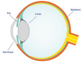 Die Implantation Die ICL kann problemlos gefaltet werden und mit einem Injektor über einen sehr kleinen Schnitt in das Auge eingebracht werden.