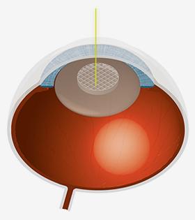 Anschließend wird die Linse in der Tiefe mit dem Laser in feine Stücke zerschnitten und abgesaugt.
