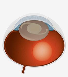 Die Kunstlinse wird in den Linsensack eingesetzt und kann sich perfekt zentrieren.