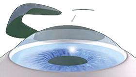 laserbehandlung hornhaut