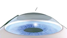 Einlegen des Implantats