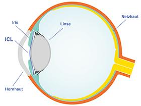 Wo liegt die ICL im Auge? Die ICL liegt deshalb so stabil, weil sie in der Hinterkammer des Auges liegt, also zwischen der Iris und der natürlichen Linse.