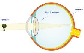 monofokallinse