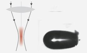 Herkömmliche Femtolaser Herkömmliche Femtosekundenlaser arbeiten mit breiten und hochenergetischen Laserpulsen, um das Gewebe zu durchtrennen.