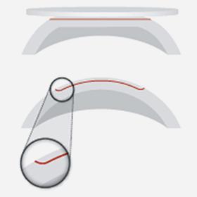Herkömmliche Femtolaser Bisher waren nur flache Schnittkanten möglich, der Flap konnte seitlich verrutschen und erlaubte das Einwachsen von Zellen unter den Flap.
